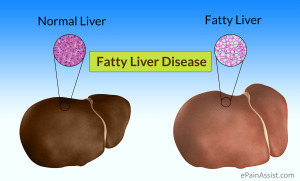 Fatty-Liver-Disease