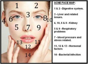 acne-face-map